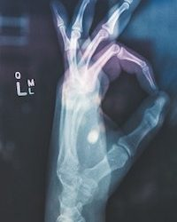 Symtom vid artros. Del III