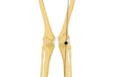 Hips that affect the knees